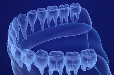 השתלות-שיניים-ממוחשבות