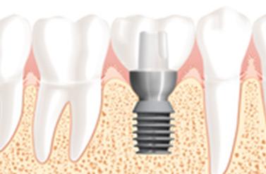 כתרים בשיניים