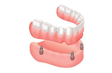 שיניים תותבות נשלפות